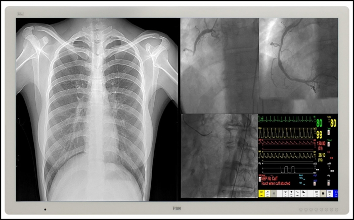 FSN Medical X-Ray